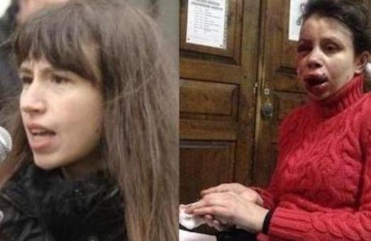 Львівські журналісти  протестують проти побиття колег