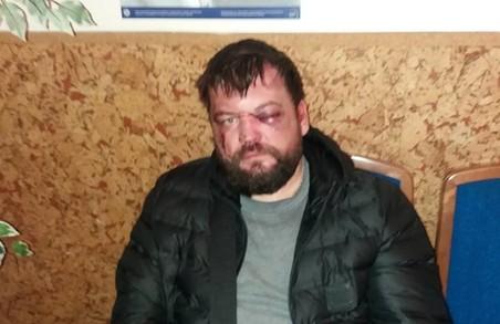 Split перетворюється у Сталінград: охорона покалічила атовця та викликала ДСО за те, що той вимагав книгу скарг