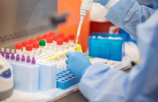За минулу добу на Львівщині знову виявили понад півтори сотні нових інфікованих коронавірусом