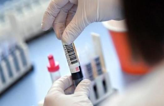 Вчора на Львівщині із підозрою на COVID-19 госпіталізували майже 100 пацієнтів