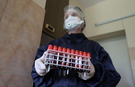 На Львівщині учора провели менше 900 ПЛР-тестів для виявлення COVID-19