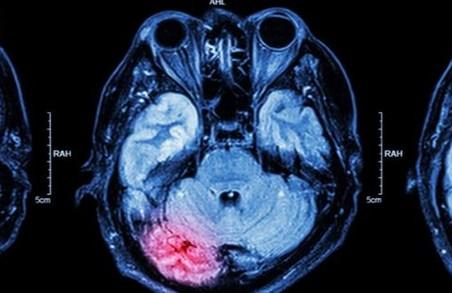 Сьогодні – Всесвітній день боротьби з інсультом