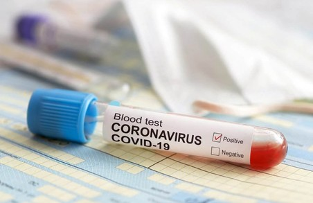 У Львові понад 16% ІФА-тестувань виявили COVID-19
