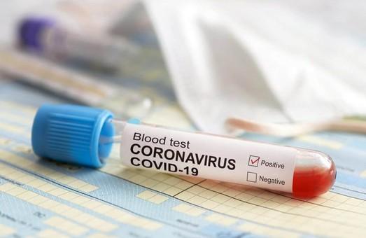 На Львівщині протягом доби середи провели 3386 діагностичних тестів на COVID-19